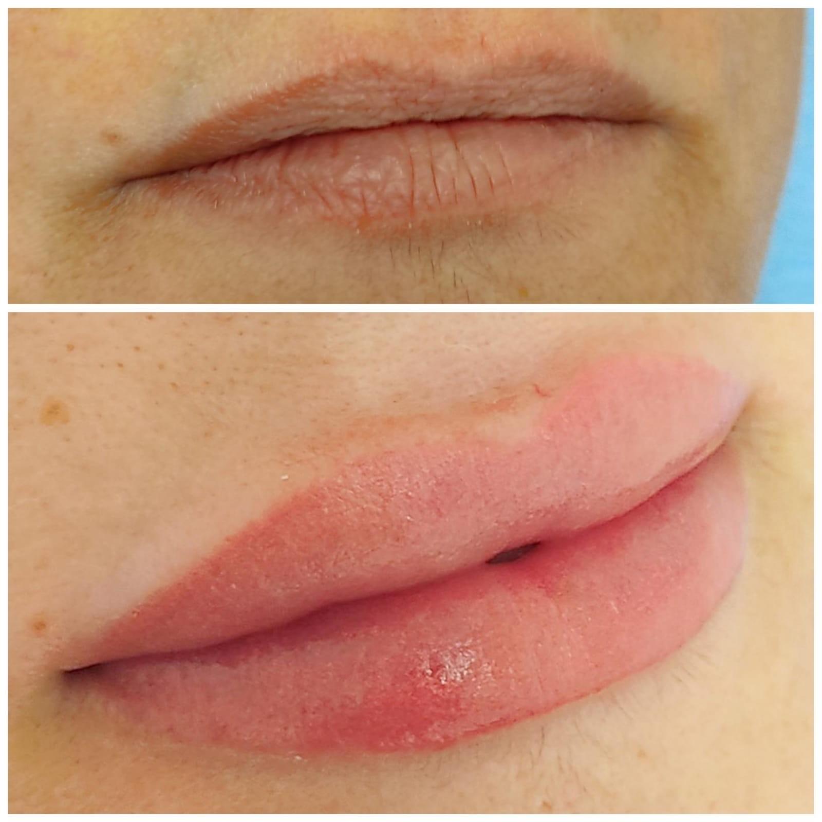 Microblanding para el perfil de los labios